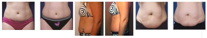 before-after-fat-reduction-2