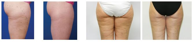before-after-fat-reduction